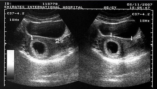 Early Development Of Human Trophoblast : Pregnancy Sickness